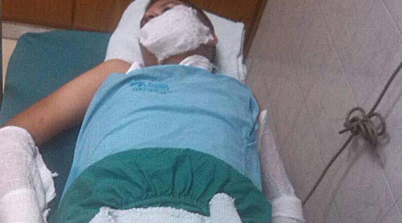 Ataque con bombas molotov hiere a 4 personas en Táchira
